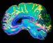 Musician Sting's brain scan gives more insight into expertise
